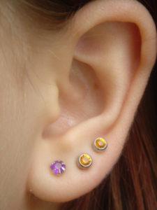hyperacusis sensitive hearing